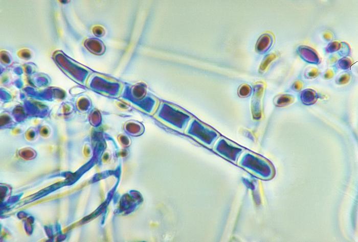 毛癬菌屬 圖片來源:CDC/Libero Ajello博士--該媒體來自美國疾病控制和預防中心的公共衛生圖片庫(PHIL),識別號為4245。 毛癬菌屬的皮癬菌通常棲息在土壤、人類或動物中,是導致毛髮、皮膚和指甲感染的主要原因之一,即人類的皮癬。